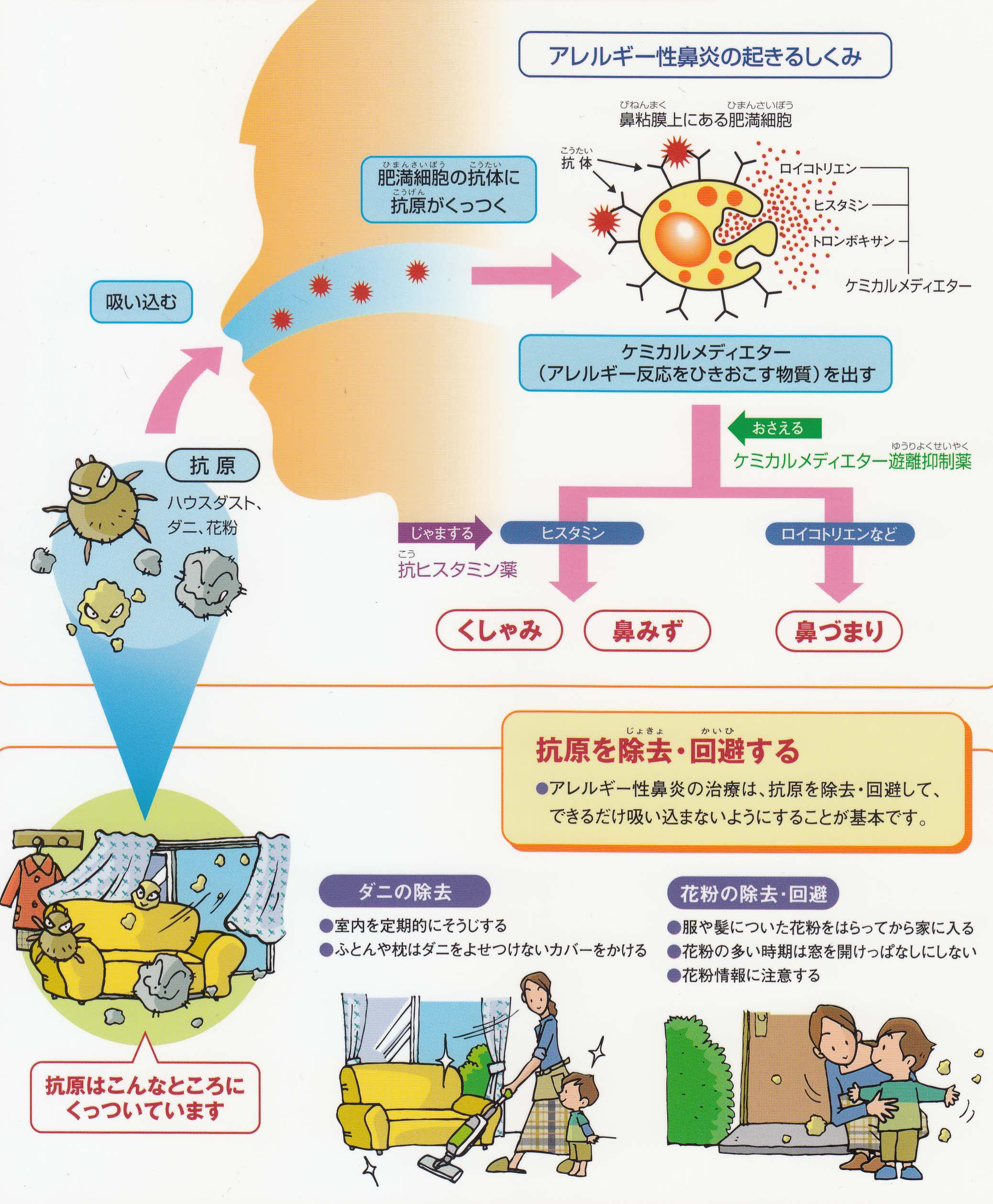 鼻炎 アレルギー 性