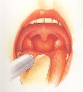それって扁桃腺ですか